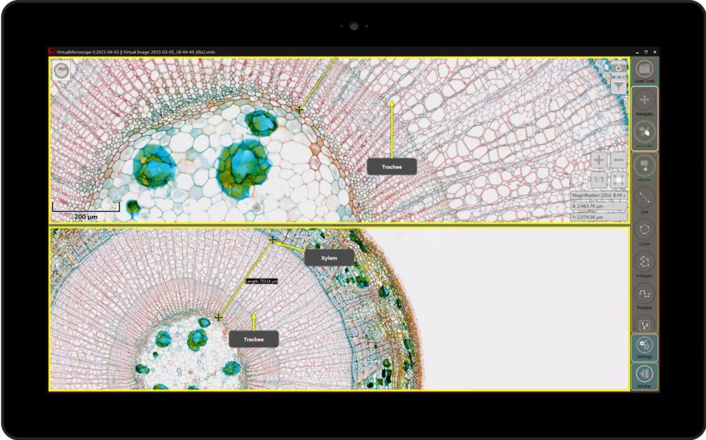 PreciPoint M8 Microscope and Scanner - comparison digitized image