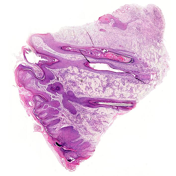 skin-biopsy-Grundium