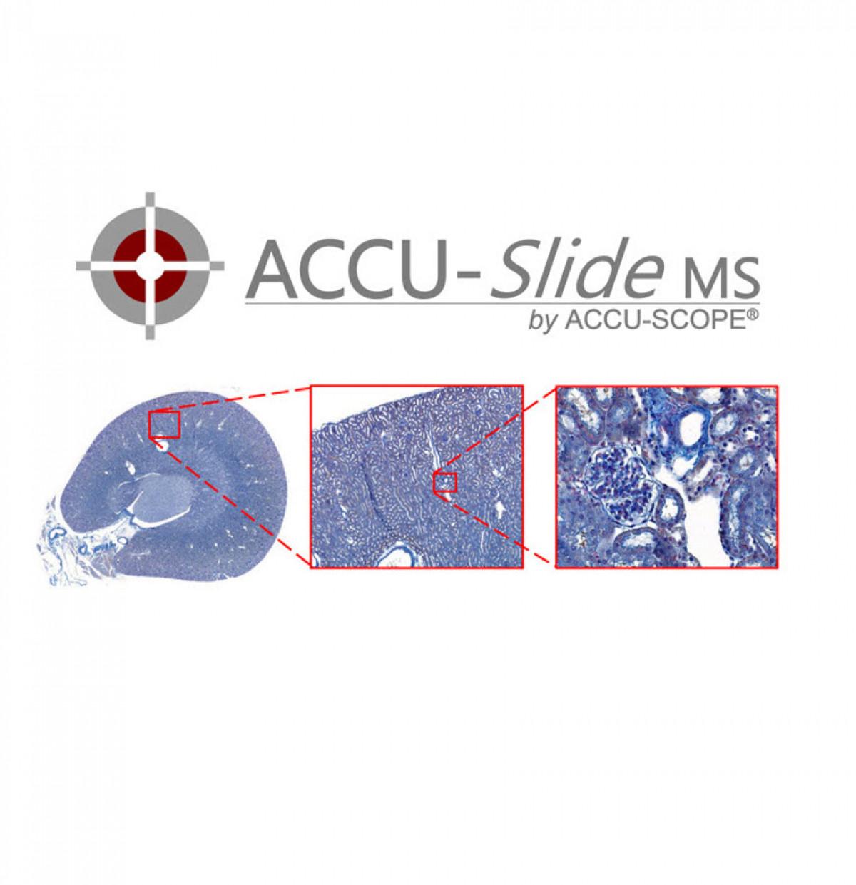 accu-slidems