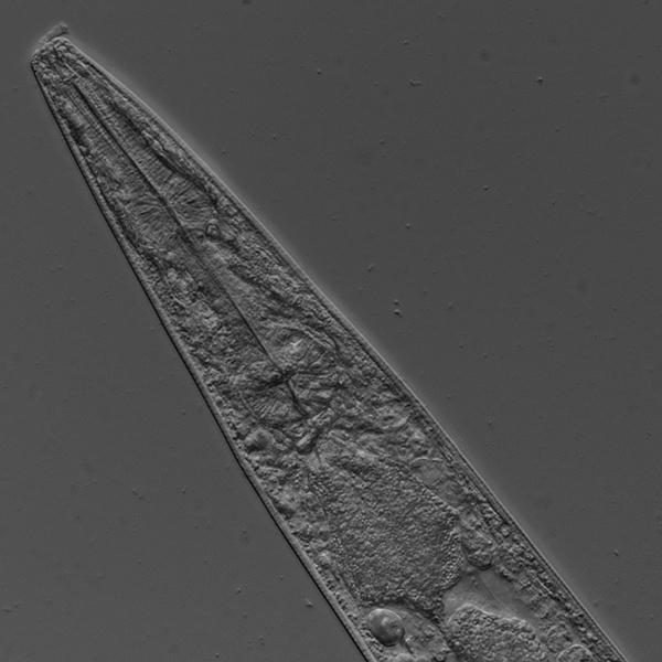 c.-elegans-20x-dic-edf